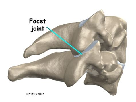 facet joint picture 7
