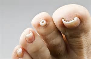 will vinegar treat toenail fungus picture 3