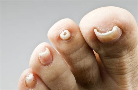 toenail fungus cures picture 17