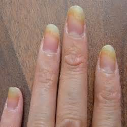 natural remedy nail fungus picture 2