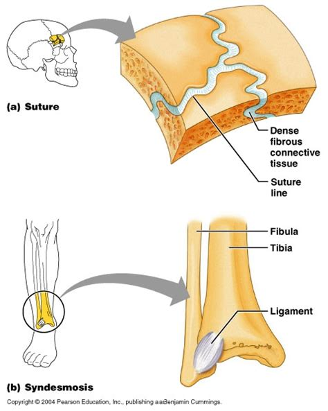 fibrous joint picture 2
