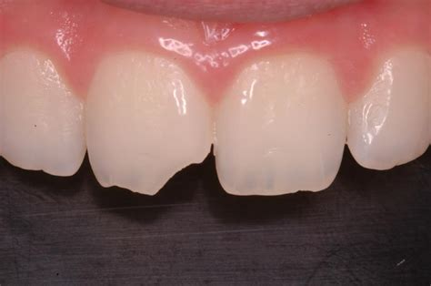 ligation of exposed tooth picture 7