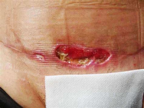 lip line treatment picture 10