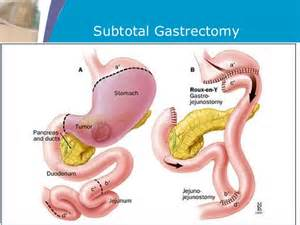 gastrointestinal tumors picture 5