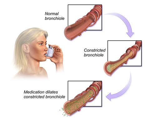 bronchial smooth muscle picture 6