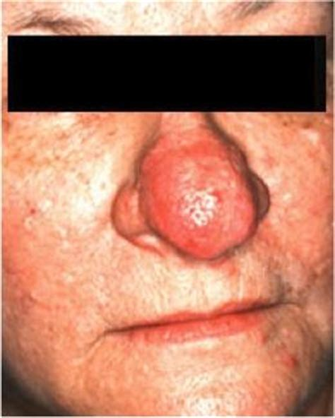 doxycycline 50 mg rosacea picture 7