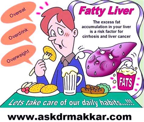 causes fatty liver picture 6