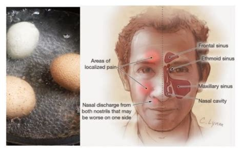 can sinus infections cause boils picture 13