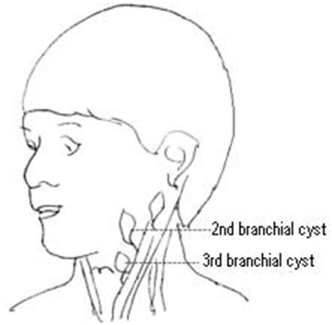 castor oil for bartholin cyst picture 11