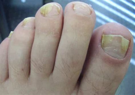 cure for yellow toe nail fungus picture 2