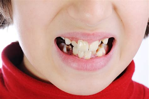 discolored teeth in children picture 1
