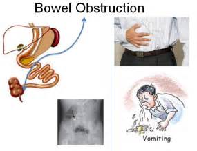 blocked colon symptoms picture 1