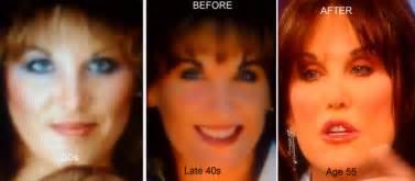 dr phil's wife robbins skin regimen picture 6