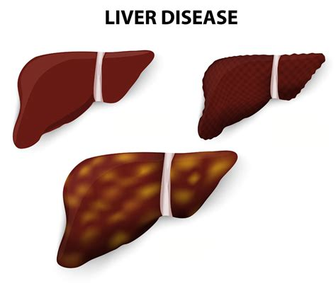 cirrhosis liver early symptoms picture 10