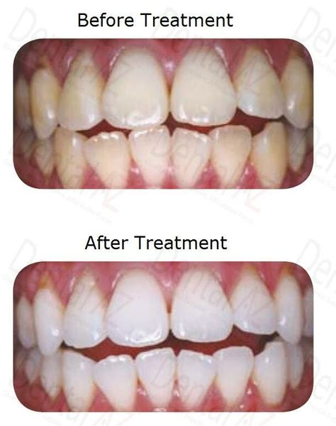 whiten teeth without perioxide or bleach picture 9