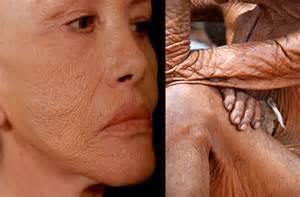 skin damage picture 13