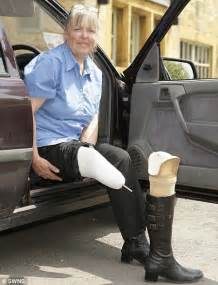 amputee women prosthetic leg picture 2