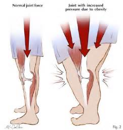 overweight effects on knee joints picture 6