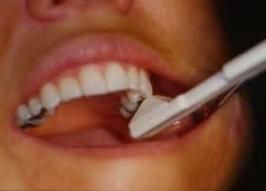 flu teeth discoloration picture 19