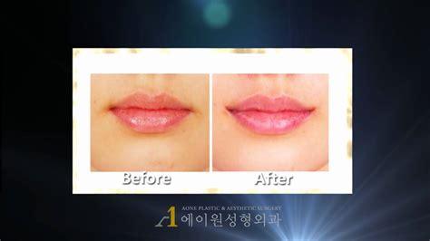 corner lip lift, uk picture 2