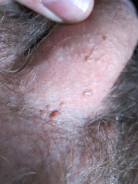 penis touched genital wart picture 13
