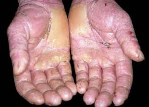 diseases of the skin picture 5