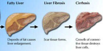 can pcos lead to a fatty liver picture 3