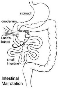 nonrotation of bowel and abdominal cramping picture 2