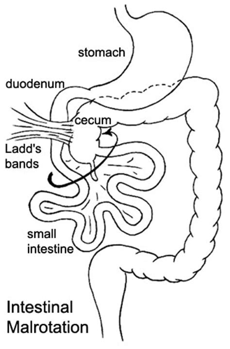 intestinal nonrotation and pain picture 1