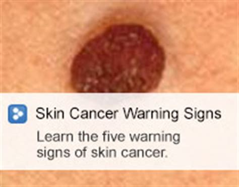 skin cancer warning signs picture 5
