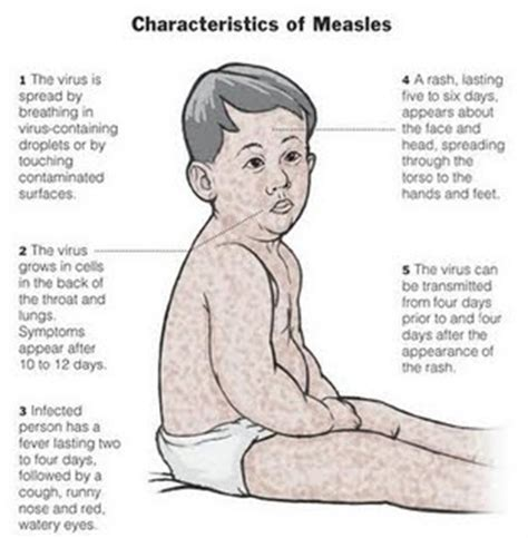 virus from metals in vaccines and symptoms picture 20