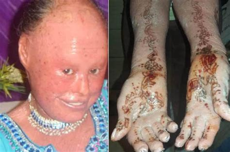 causes of changes skin condition picture 13