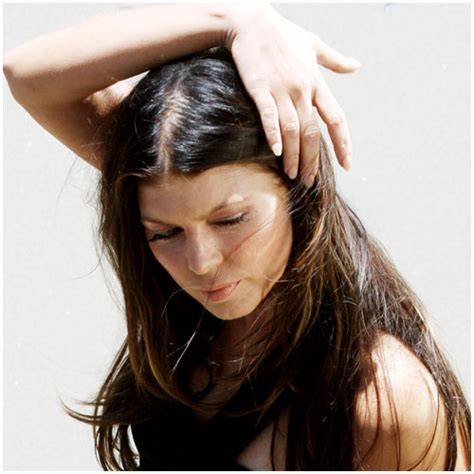 hair loss women picture 6