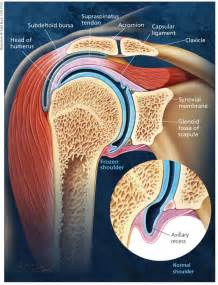 adhesion hip joint pain picture 14
