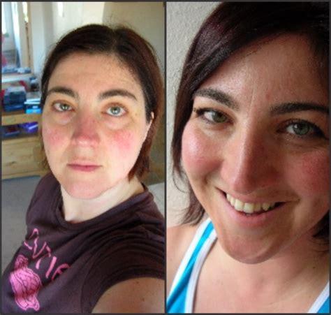 weight gain, hair loss, rash picture 11