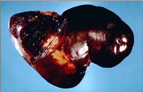 clostridium and liver damage picture 2