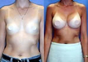 breast salines injections picture 6