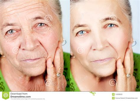 what secret are women using for no wrinkles picture 6