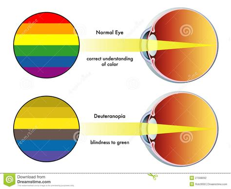 lens for color blindness in the philippines picture 7