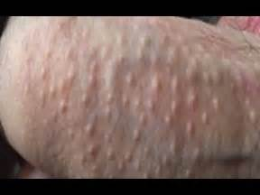 pimples on penis shaft picture 7