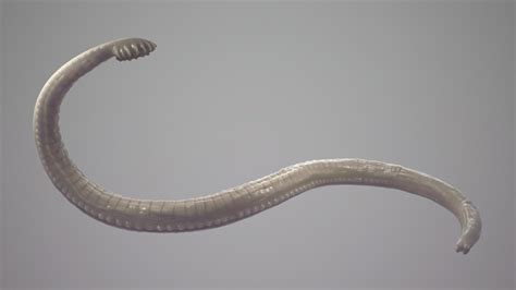 intestinal worms in s picture 2
