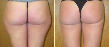 Get rid of dimple and cellulite in picture 5