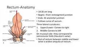sigmoid colon picture 2