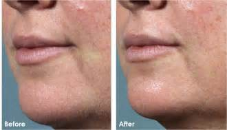 before and after pictures of dermaplaning picture 1