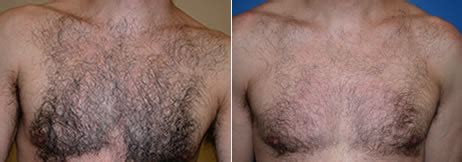 chemical hair rrremoval picture 15