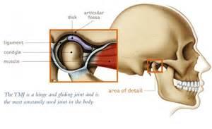 miami temporo-mandibular joint pain picture 2