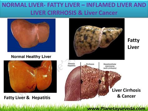 fatty cirrhosis of the liver picture 15