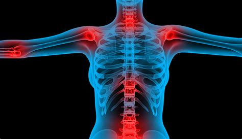 can seroxat cause joint pain picture 17