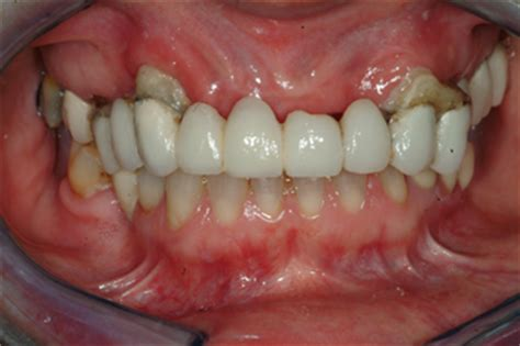 new york teeth whitening picture 11