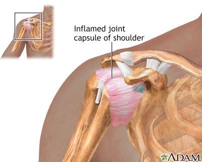 shoulder joint pain picture 19